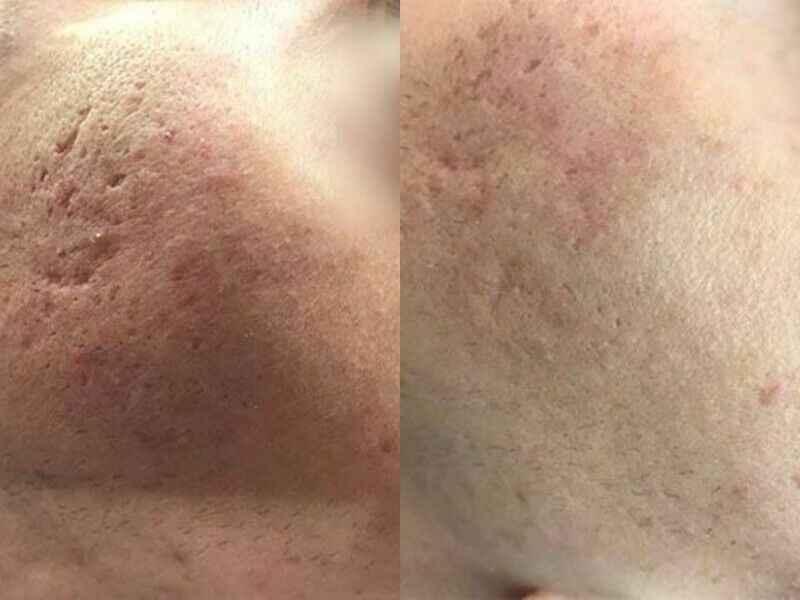 KOSMETOLOGIA -  Terapia estGen, leczenie trądziku Zgierz - zdjęcie 1