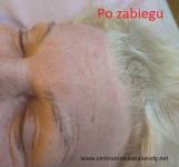 Kosmetologia - Zabieg liftingujący twarz Zgierz - zdjęcie 4
